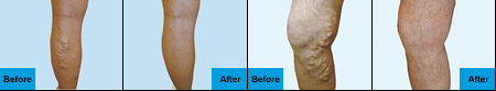 Varicose Veins Before and After VenaCure EVLT Treatment